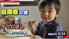 自閉症児のオウム返しの様子が分かる動画
